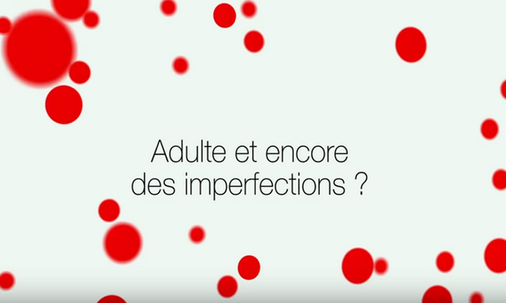 capture adulte imperfections